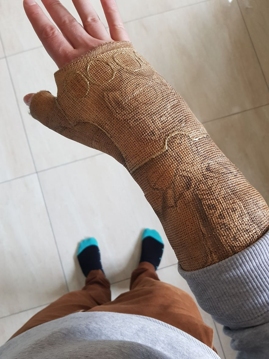 After Breaking My Wrist, I Turned My Plain Cast Into Thanos